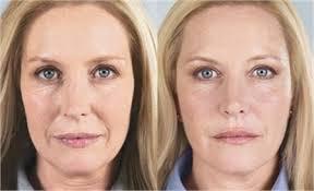 13 - کلاژن تراپی پوست چیست ؟ آیا دستگاه فیس آپ قادر به تحریک تولید کلاژن در پوست است؟!