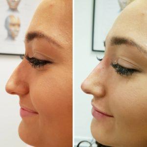 18 300x300 - تزریق فیلر بینی ، جایگزینی فوق العاده برای جراحی رینوپلاستی و اصلاح فرم بینی!