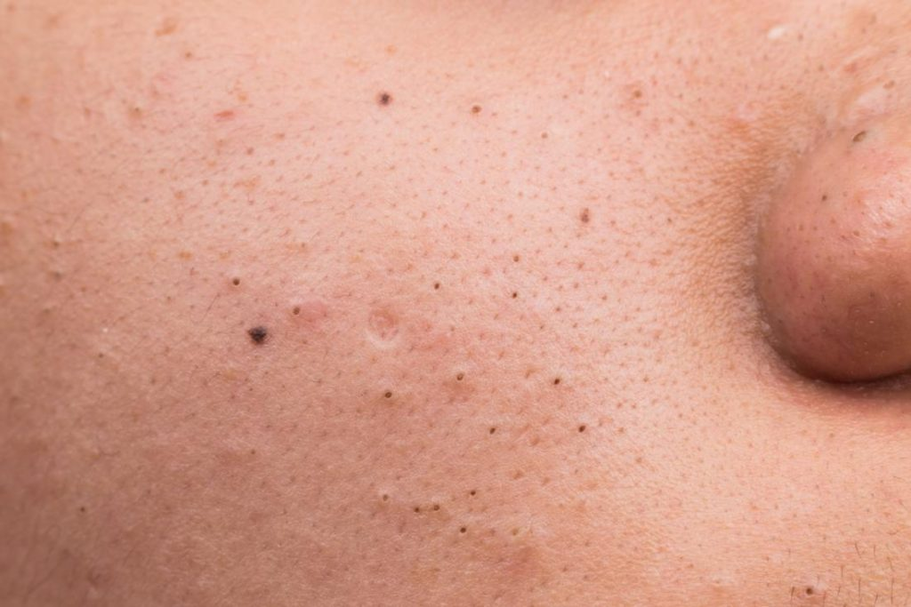 271 1024x683 - درمان فوری جوش صورتبا دستگاه فیس آپ!دیگر نگران پوست خود نباشید!