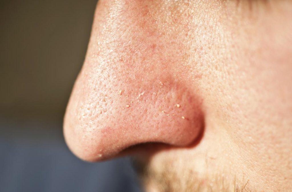 272 1024x674 - درمان فوری جوش صورتبا دستگاه فیس آپ!دیگر نگران پوست خود نباشید!