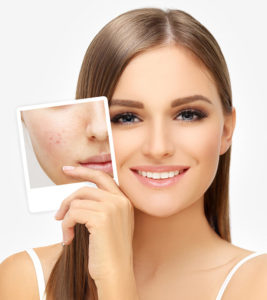 273 267x300 - درمان فوری جوش صورتبا دستگاه فیس آپ!دیگر نگران پوست خود نباشید!