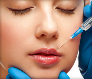 375x321 cosmetic procedures lip augmentationxml ref guide 300x257 - تزریق ژل لب در شیراز| تخلیه ژل لب در شیراز| هزینه تزریق ژل لب+فیلم