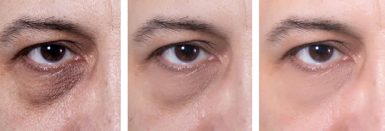 38 - فیلر زیر چشم برای رفع کیسه ها و سیاهی دور چشم ، بهترین گزینه است!