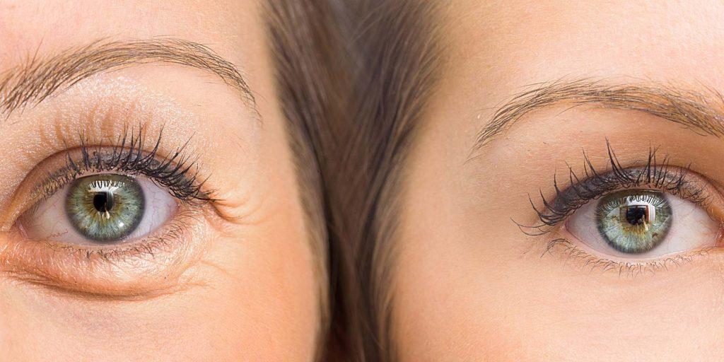 40 1024x512 - فیلر زیر چشم برای رفع کیسه ها و سیاهی دور چشم ، بهترین گزینه است!