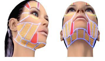 HIFU 357x210 - مزایای جوانسازی و لیفت صورت و گردن با هایفو | عوارض هایفو