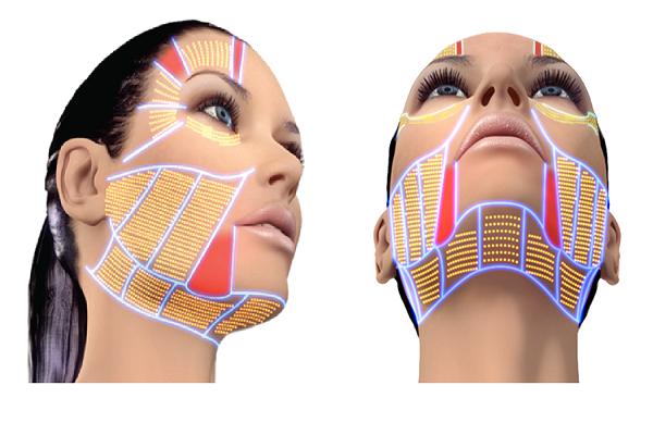 مزایای جوانسازی و لیفت صورت و گردن با هایفو | عوارض هایفو