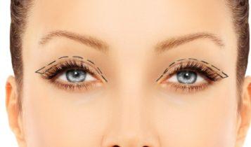 eyelid 600x400 357x210 - درمان افتادگی پلک با پلاسما جت فیلم بلفاروپلاستی با پلاسما جت