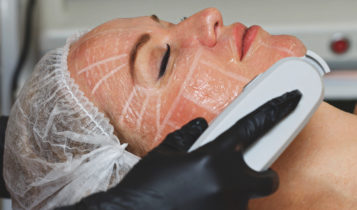 hifuTreatment Replace Face Lifts 357x210 - مزایای جوانسازی و لیفت صورت و گردن با هایفو | عوارض هایفو