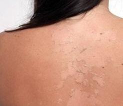 woman sunburn - لیزر دایود بهتر است یا الکساندرایت| فرق دستگاه لیزر دایود و الکساندرایت چیست؟| لیزر دایود