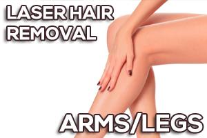 Laser Hair Removal Arms Legs Prices - قیمت لیزر موهای زائد پا و دست|بهترین مرکز لیزر در ساری+فیلم