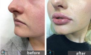 lip injection san diago 1030x630 300x183 - همه چیز درباره تزریق ژل لب : ورم بعد از تزریق ژل لب ، هزینه تزریق ژل لب و ...