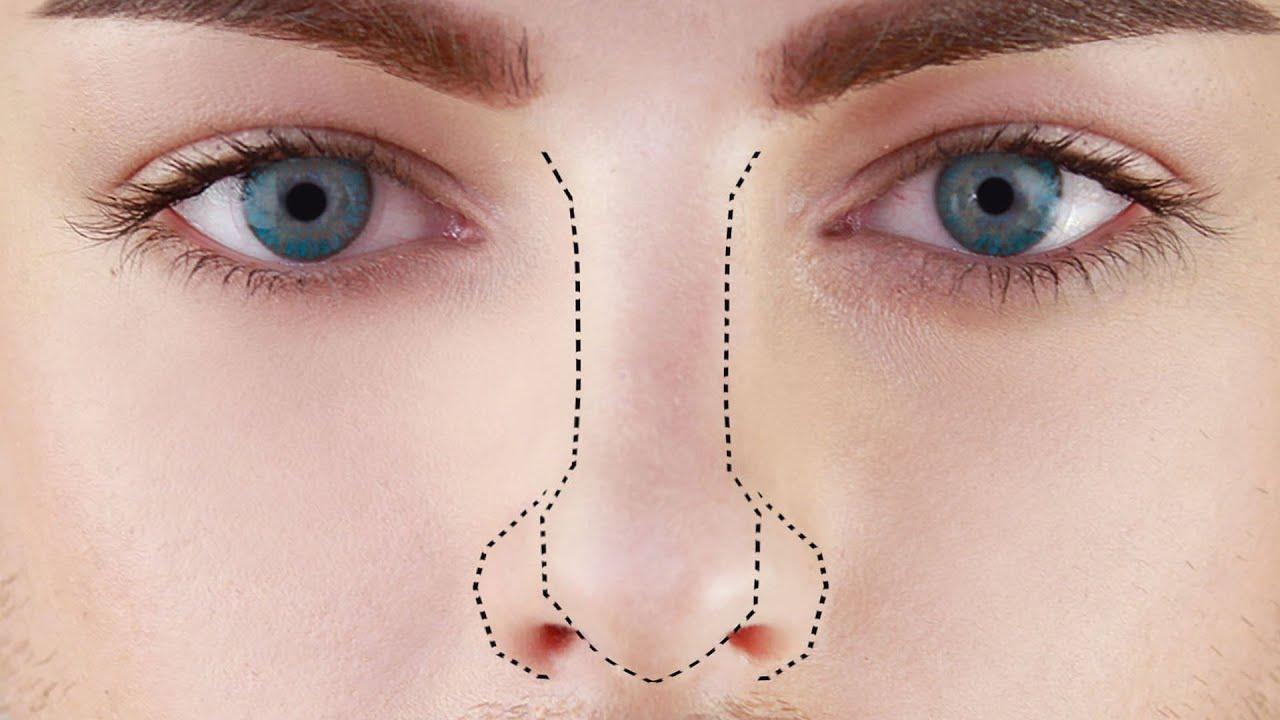 فرم دهی بینی بدون جراحی