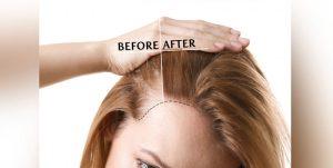 الشعر بدون جراحة 300x151 - کاشت مو | نحوه کاشت سبیل | کاشت مژه طبیعی
