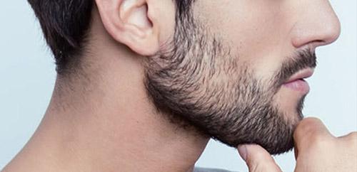 beard mustache transplantation - کاشت مو | نحوه کاشت سبیل | کاشت مژه طبیعی