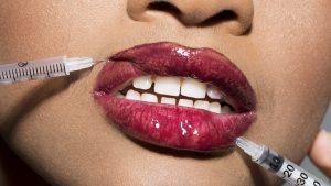 lip20injections20with20makeup20and20syringe 300x169 - عوارض تزریق ژل لب | بی دردسر، فیلر تزریق کنید!!