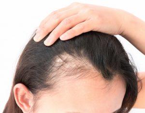 meso 300x233 - مزوتراپی برای ریزش مو | مزوتراپی مو در اهواز