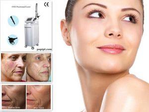 rf fractional co2 laser acne scare removal beauty 1262388 300x225 - بهترین روش جوان سازی پوست صورت : لیزر جوانسازی