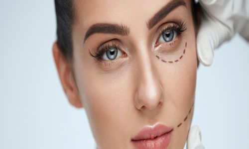 195 - بهترین فوق تخصص جراحی پلک در تهران