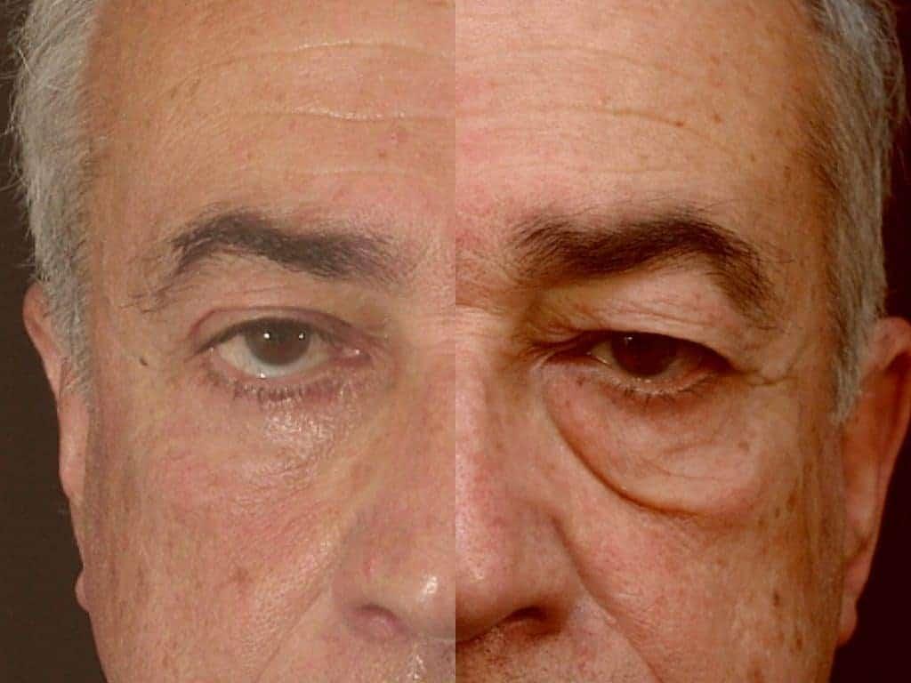 blepharoplastie marrakech 2 1024x768 - بلفاروپلاستی هزینه | قیمت جراحی پلک در تهران