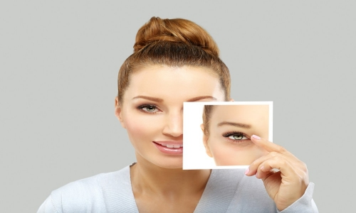 eyelidsurgery2 min - تخفیف عمل پلک | بهترین جراح بلفاروپلاستی در تهران
